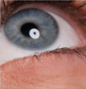 7 Reasons You Should NOT Be Considered for LASIK